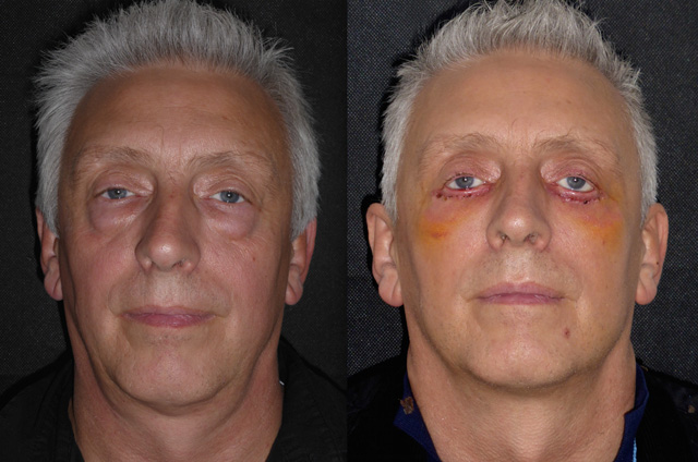 Blepharoplasty recovery pictures » Eyelid Surgery: Cost ... |Lower Blepharoplasty Recovery Photos