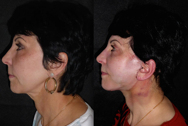 Dian 62 Facelift, Neck lift, platysmaplasty