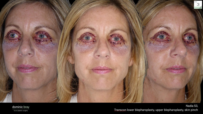 Blepharoplasty FAQ and Recovery Time - Dr. Julian De Silva ... |Lower Blepharoplasty Recovery Photos