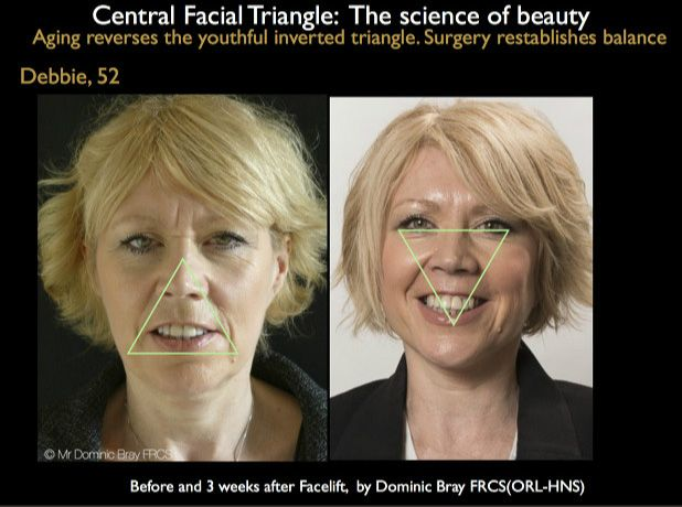 Science of beauty in the facelift