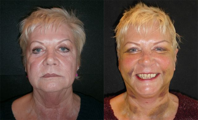 Sue 65 years old: Facelift, Neck lift, Brow lift, Liposuction