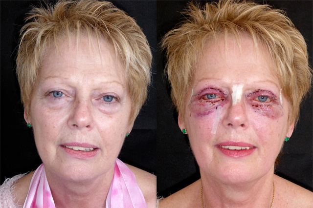 Cosmetic Eyelid Surgery Upper And Lower Blepharoplasty ... |Lower Blepharoplasty Recovery Photos
