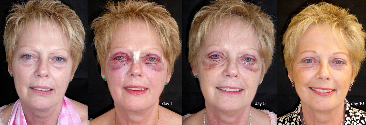 The Best Age For Blepharoplasty - Carolina Facial Plastics |Lower Blepharoplasty Recovery Photos