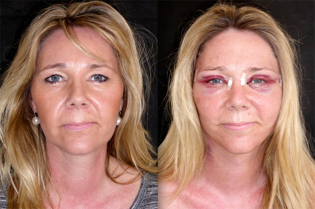 Cosmetic Surgery Eye Lift In Chicago » Eyelid Surgery ... |Lower Blepharoplasty Recovery Photos
