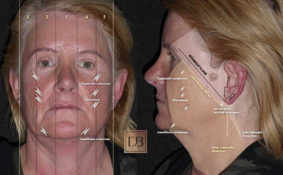 Ageing face signs