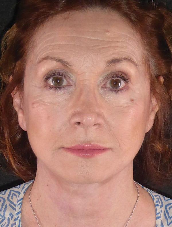 Antoinette, 68