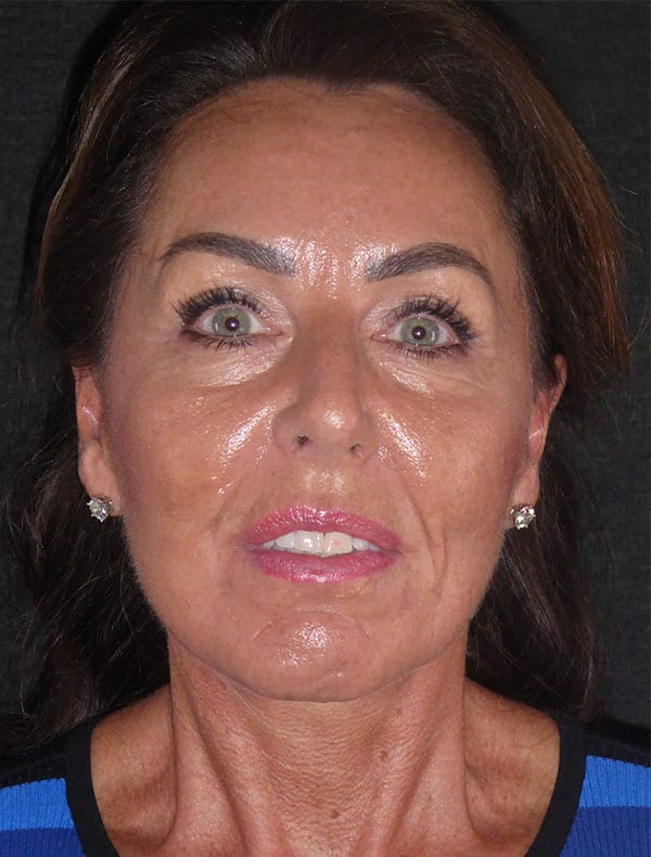Carol, 55