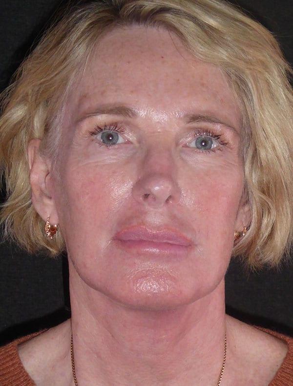 Caryn, 60