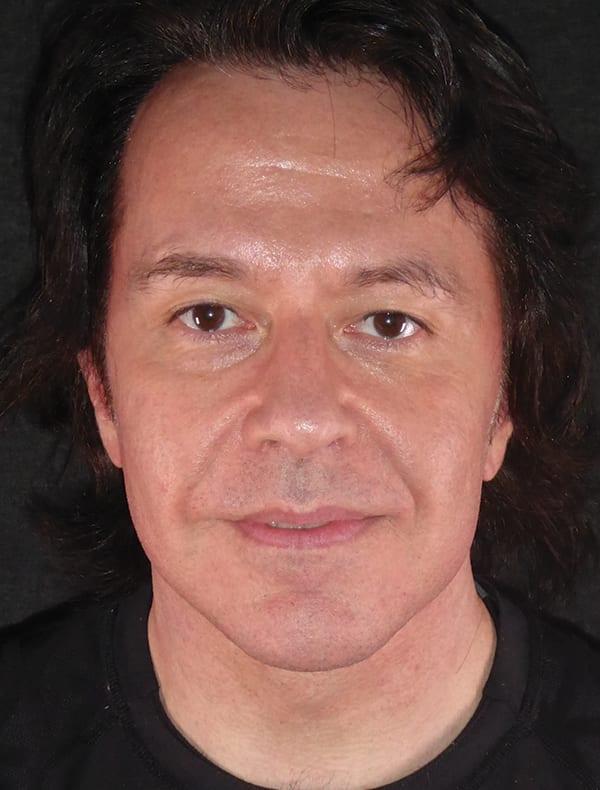 Chris, 51