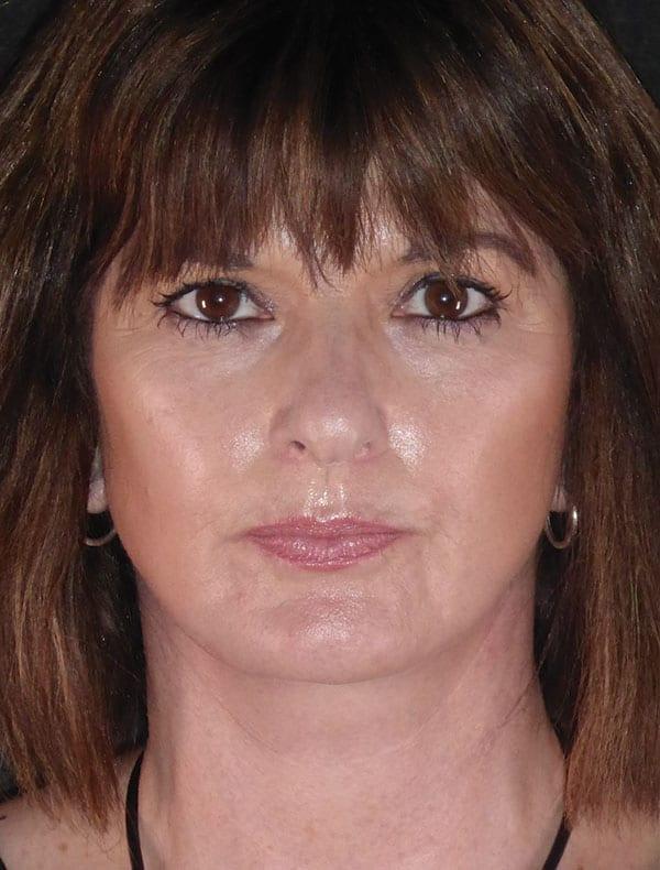 Debbie, 52