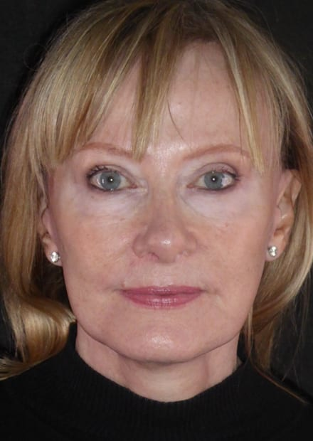 Liz, 66