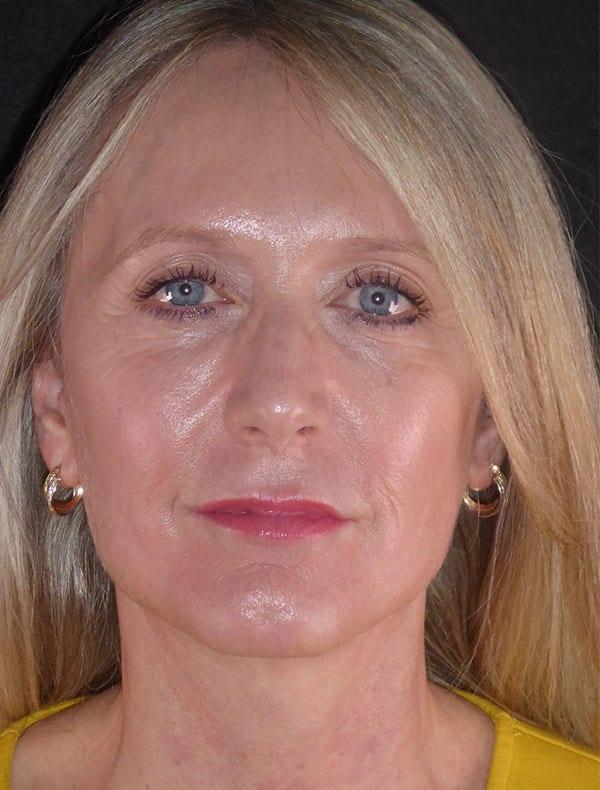 Jane, 50