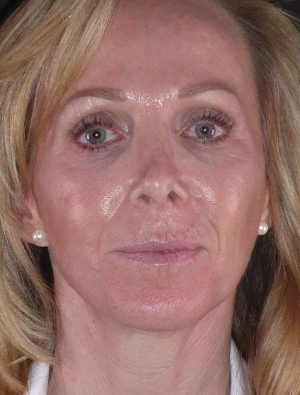 Louise, 56