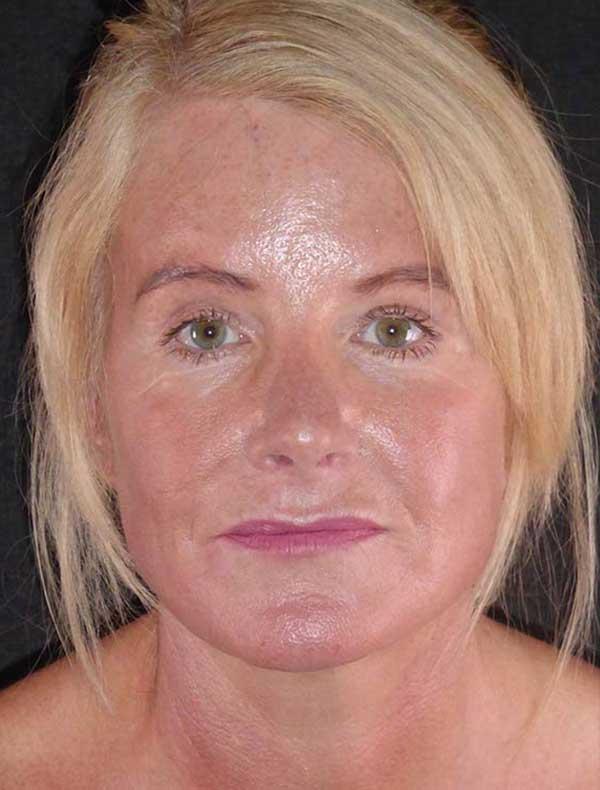 Helen, 59