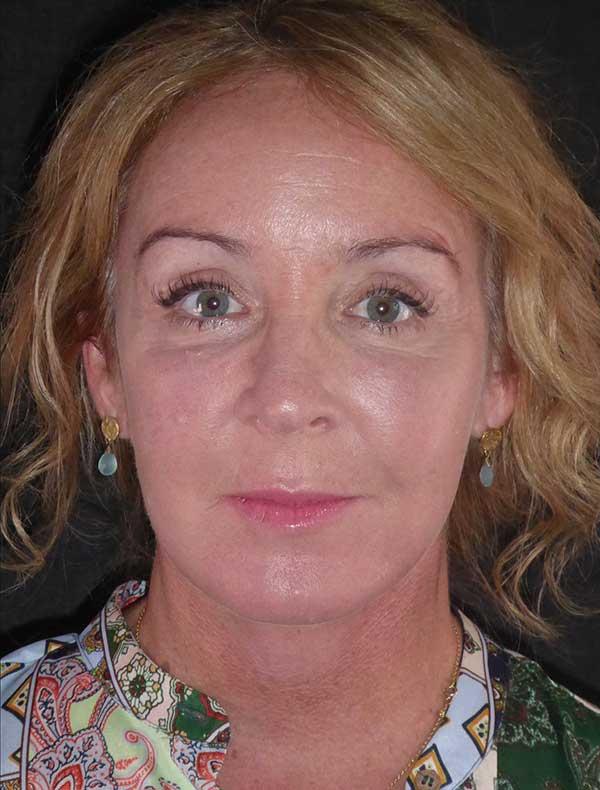 Lisa, 54