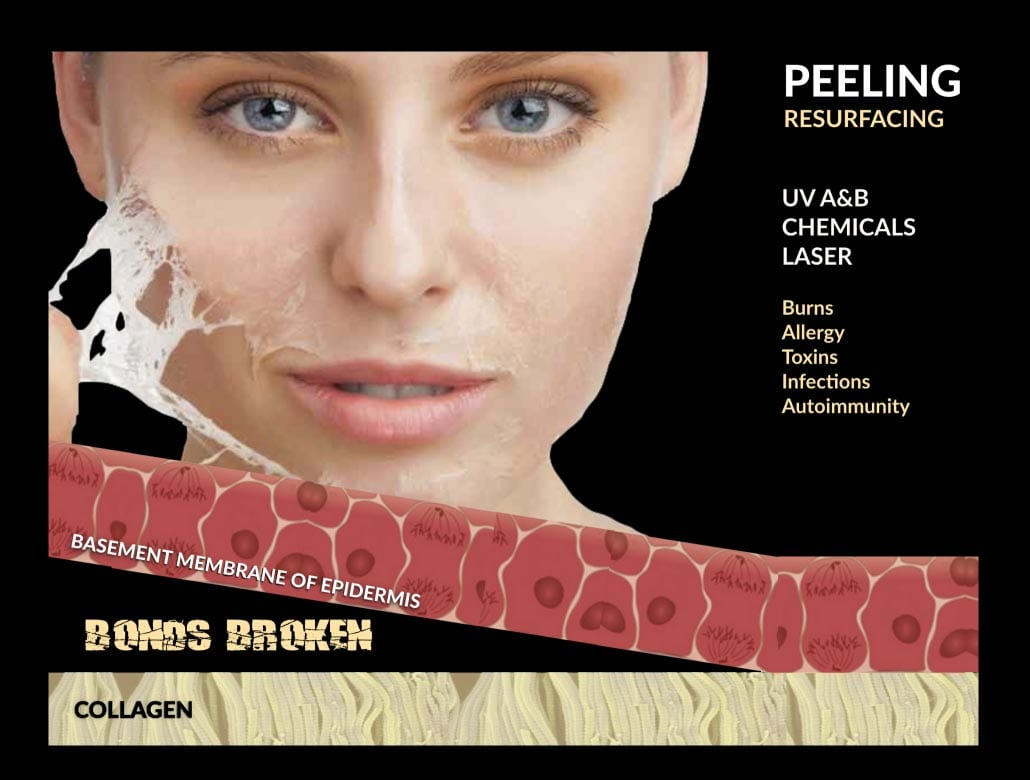 Peeling Resurfacing