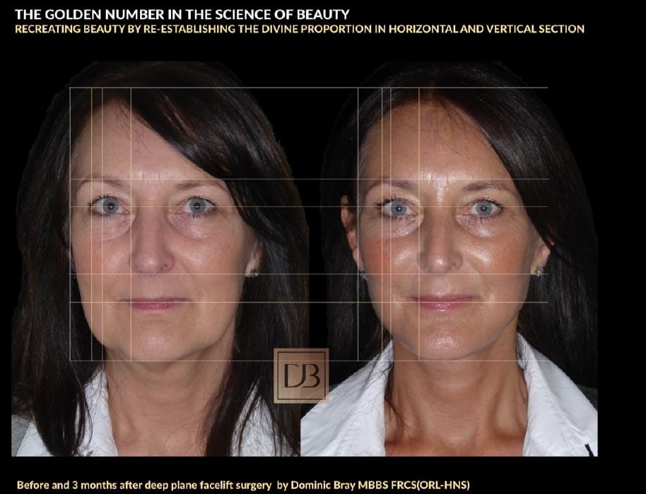 Before and 3 months after deep place facelift surgery