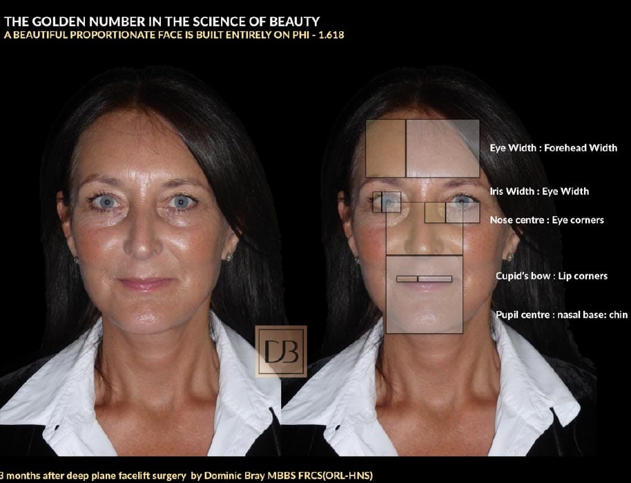 3 months after deep place facelift surgery