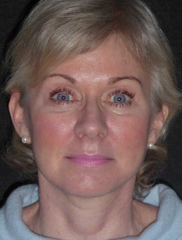 Ruth, 54