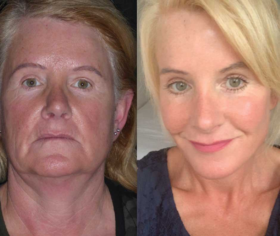 How facelifting ultimately affects / affect / life / approach