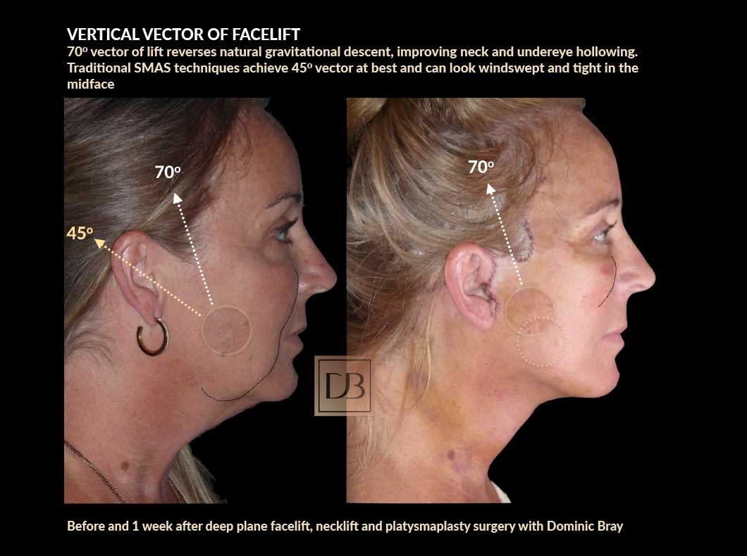 Vertical vector of facelift - before and 1 week after