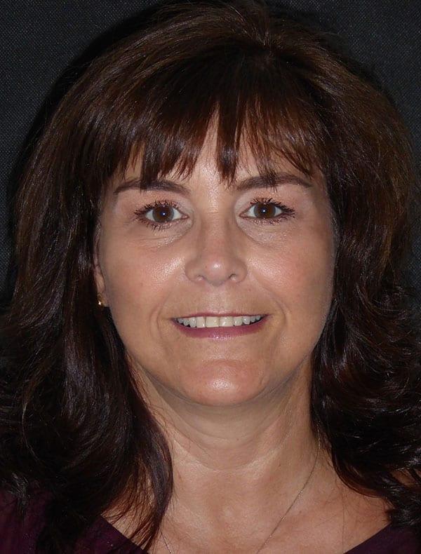 Alison, 52