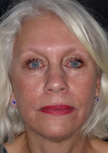 Cheryl, 58