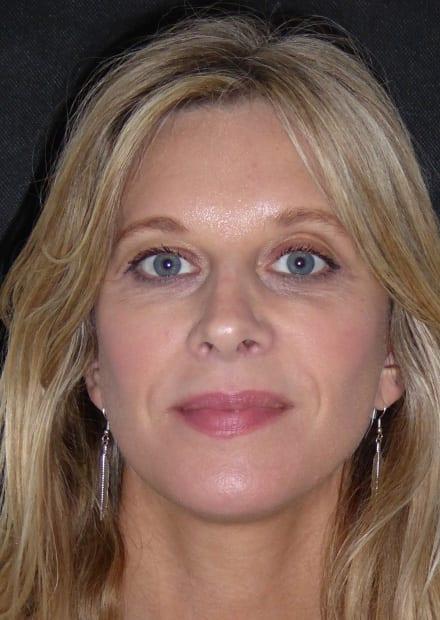 Clare, 41