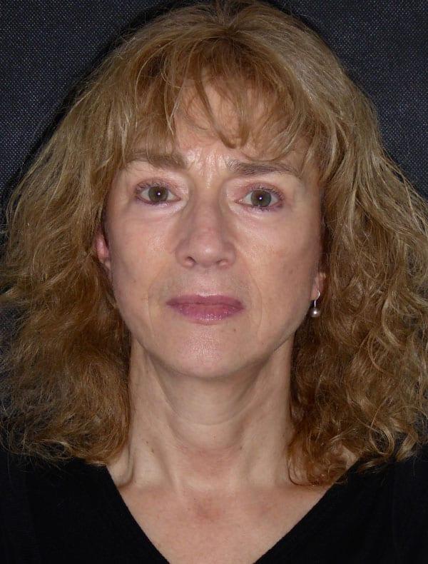 Dee, 58