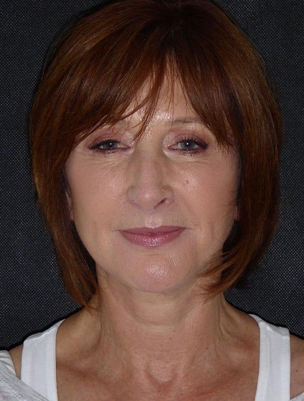 Dee, 57