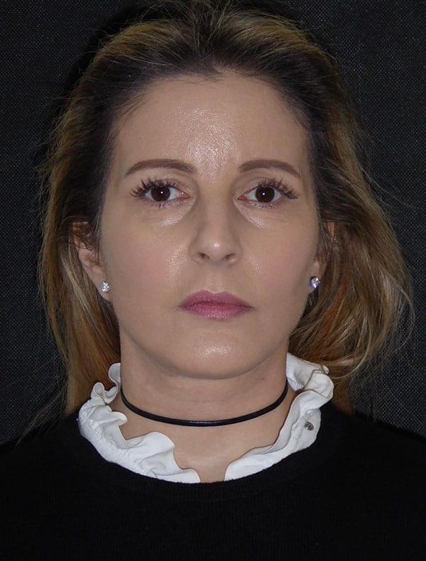 Emma, 49
