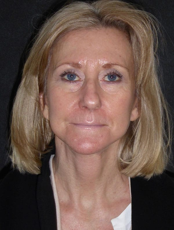 Fiona, 59