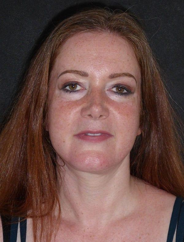 Jane, 51