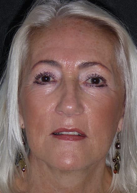 Jennifer, 64