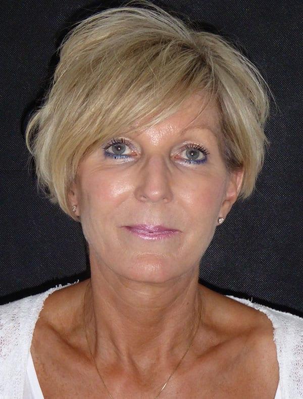 Jill, 58