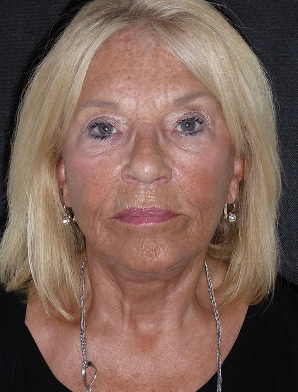 Julia, 69