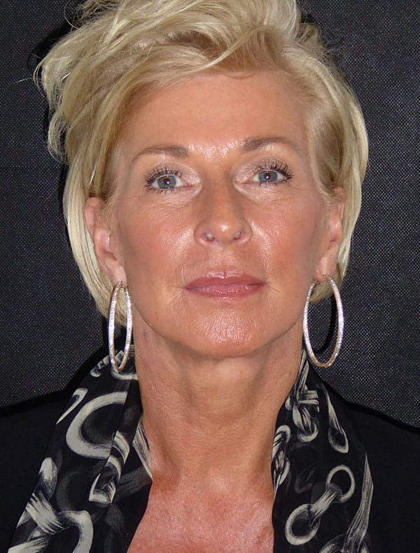 Karen, 58
