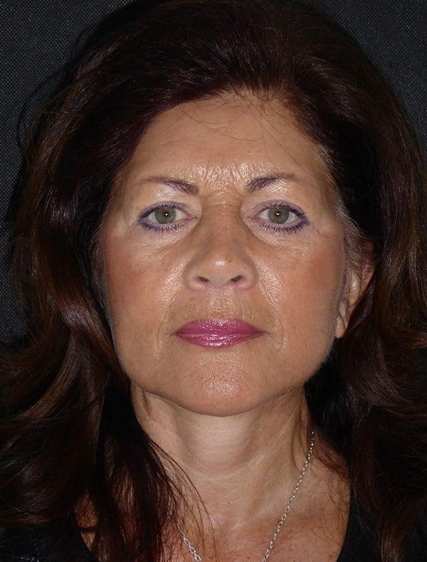 Linda, 66