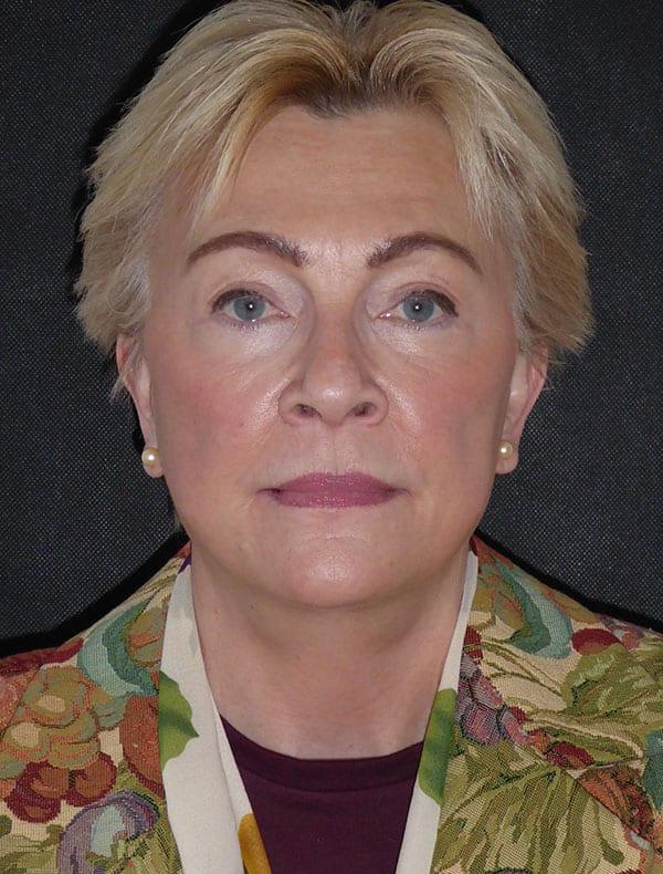 Linda, 63