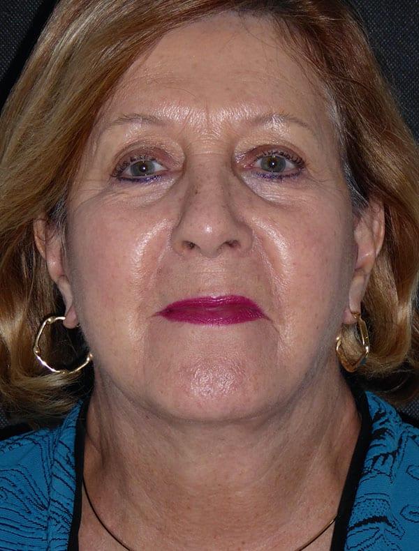 Linda, 64