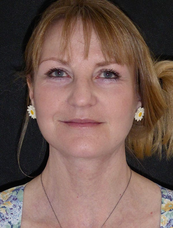 Lois, 54