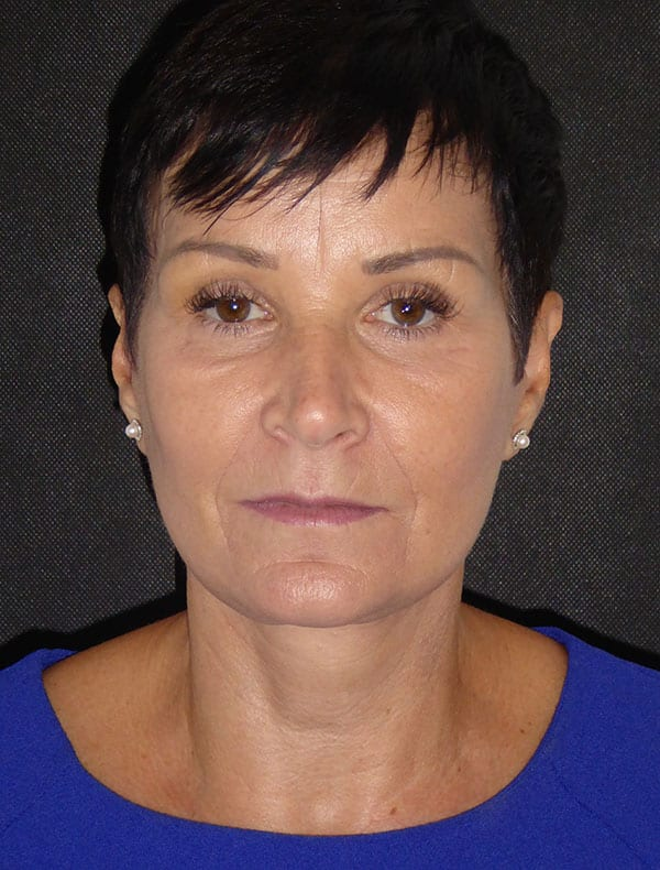 Lorraine, 57