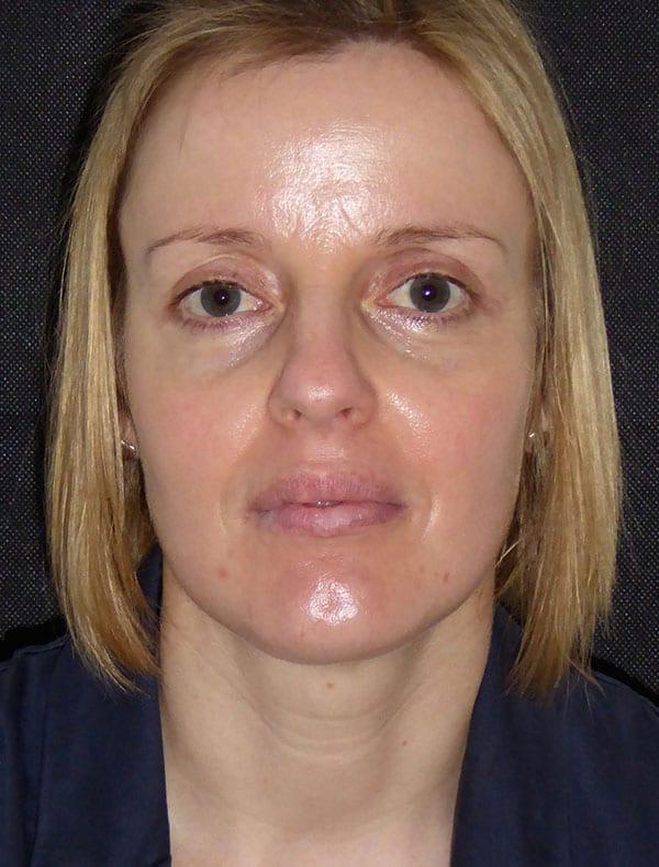 Lynne, 34