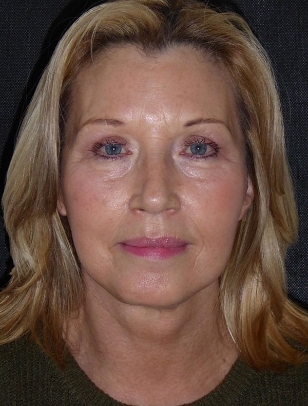 Maureen, 62