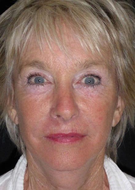 Maxine, 72