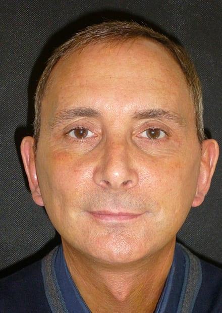 Michael, 55