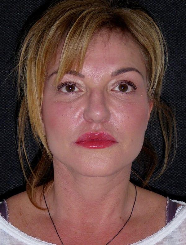 Michelle, 53