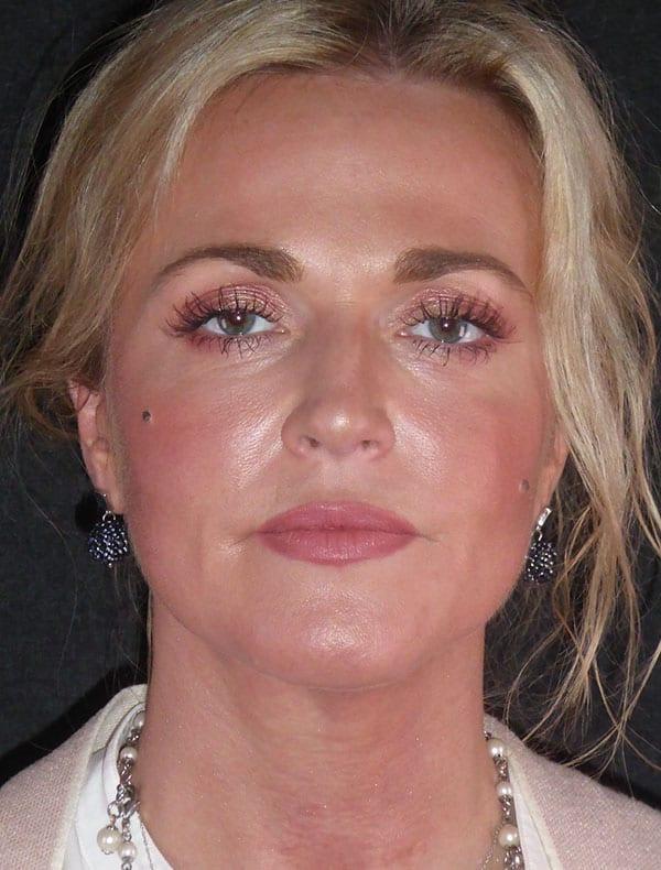 Nadine, 45