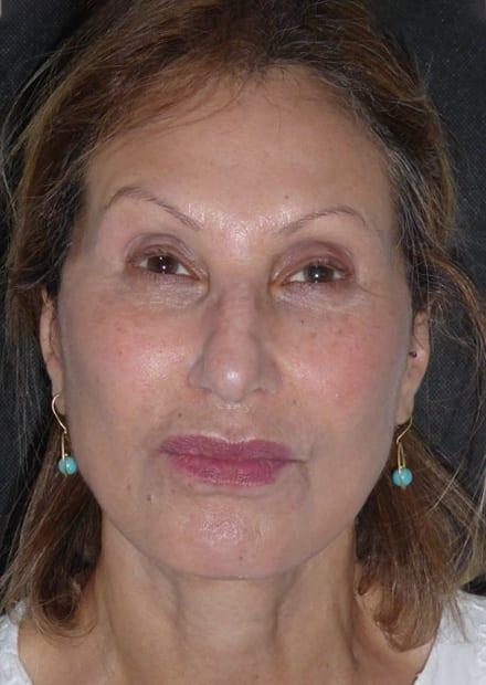 Nala, 64