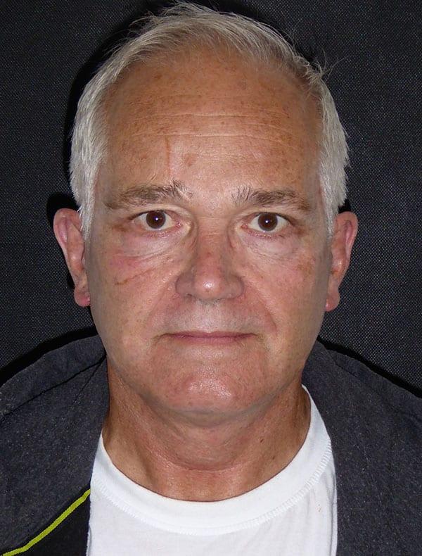 Phillip, 67